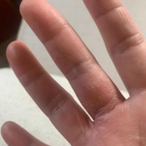 テルメ・アクアでハンドケアの経過報告 手荒れ 手湿疹