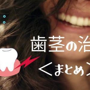 歯茎の治療<まとめ>