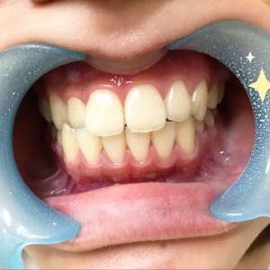キレイな歯並びとキレイな歯!羨ましいぃ。