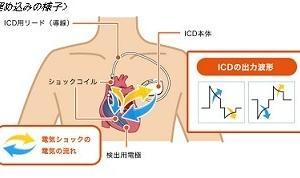 ICD外来