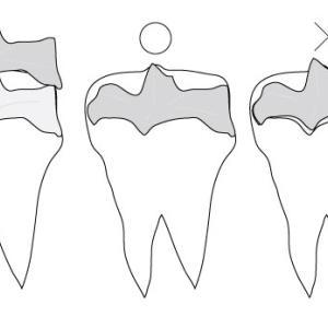 歯の詰め物・被せ物が外れるのはなぜ?