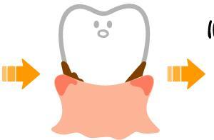 虫歯・歯周病を予防するための7つの方法