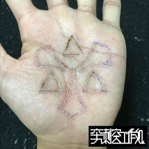 手のひらへの焼き印の治癒経過