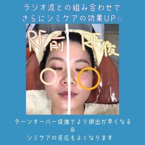 ラジオ波BeforeAfter♪
