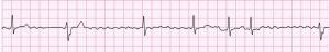 心房細動からの除細動初体験