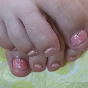 足の深爪を改善する方法は?