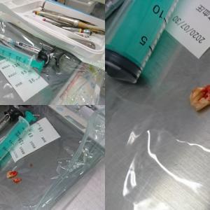 抜歯手術無事終了