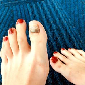 合わない靴を履いて、巻爪にもなりました。。。
