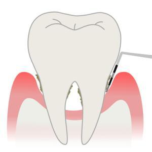 歯茎の老化が原因で差し歯の上部がフィットしない!