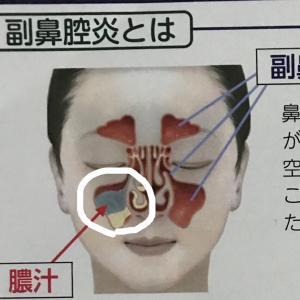 厄介な副鼻腔炎(TT)