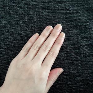地味に気になる、抗がん剤の副作用。爪の変色の記録。