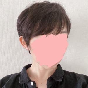 脱ウィッグから1年。最近の髪型。