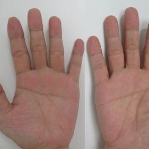 手の一直線