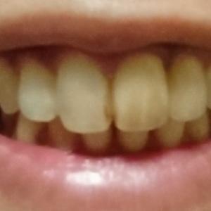 黒い歯を白くする大作戦決行。(グロ画像注意)