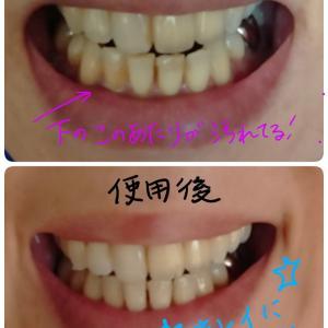 歯を白く磨き上げたよ。マスクしていても白くて綺麗な歯は保とう。