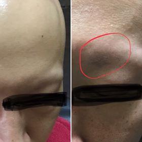 汎発性脱毛症の最初の1歩