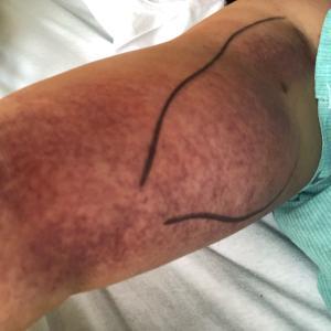 再発発覚後の手術、その経過、そして抗がん治療へ