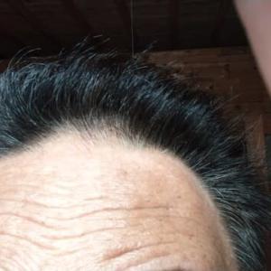 毎年この時期に抜け毛がひどくなる!