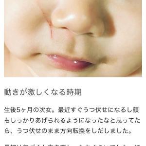 生後5ヶ月、顔着で流血