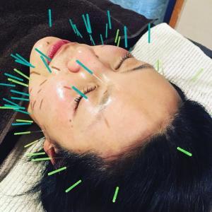 美容鍼の流れ…