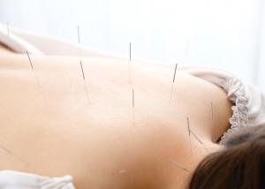 カラダの不調を感じた時には、鍼灸ですっきりしませんか??