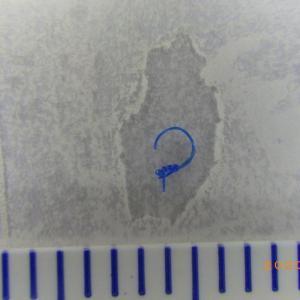 瞼板法のトラブル、懐かしの青ナイロン糸、6本除去