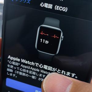 アップルウォッチで心電図アプリ/不規則な心拍の通知機能が日本でも利用可能に。Apple Watch/iOS 14.4/watchOS 7.3最新ニュース2021年1月22日