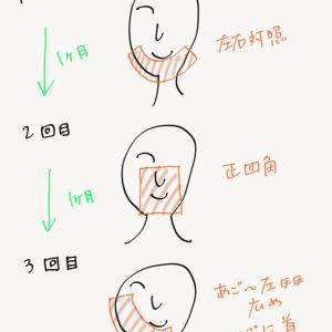 PDT治療【2期目:顎ニキビ撲滅編】治療頻度とアフターケア。