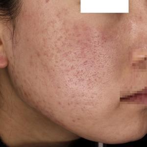 ダウンタイムがある美容治療 毛穴・ニキビ痕にダーマペン