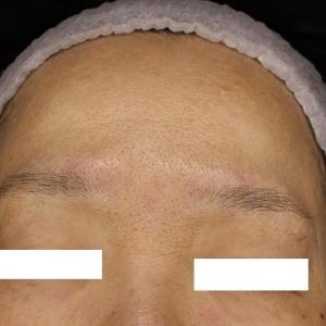 額、眉間のシワにウルトラセルQ+とボトックス注射