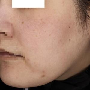 ゼオスキンヘルスでシミソバカスがうすくなりツヤ肌へ
