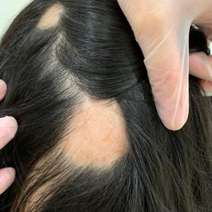 円形脱毛症に紫外線治療