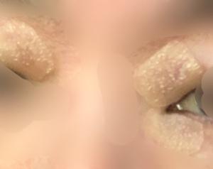 【眼瞼黄色腫】レーザー治療 当日