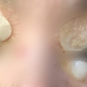 【眼瞼黄色腫】レーザー治療 2日目