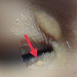 【眼瞼黄色腫】レーザー治療 1か月