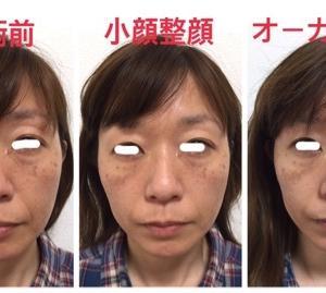 ☆オーガニックプレミアムパウダーと小顔整顔で更に効果アップの症例写真☆