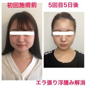 5回目の施術でさらに良い状態になりスッキリ小顔美人になる(松阪市小顔専門店)