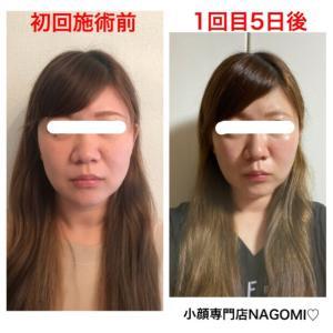 【顔の横幅は狭く頬のお肉をスッキリさせた小顔になりたい!】松阪市小顔専門店NAGOMI.
