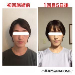 【顎の筋肉の凝りを解すことでエラ張りや二重顎の悩みは改善できます❗️】小顔専門店NAGOMI