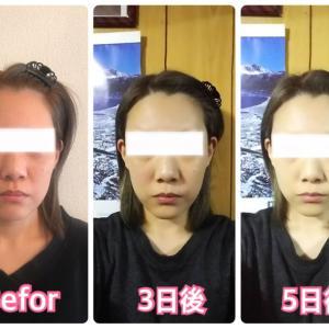 面長になってきた顔をフェイスラインがきゅっと引き締まった小顔になりたい〜♬小顔専門店NAGOMI