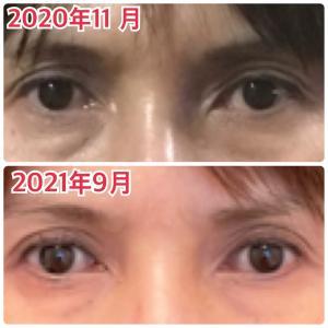 本来の目力に戻ります❗️ぱっちり開きやすくなる小顔矯正