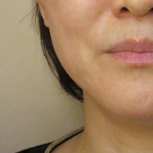 HIFU(ウルトラセルQプラス)肌のハリ
