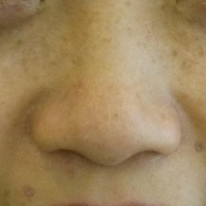 熱の治療。弌の型‼シミ・そばかす‼