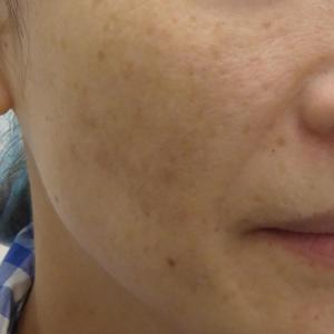 肝斑には、レーザートーニング。マスク肝斑急増中‼