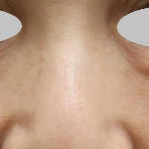 目の下の脂肪取り。眼窩脂肪‼