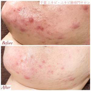 肌が乾燥するのに、痛みのあるニキビとニキビ跡が肌全体に出来ていました。