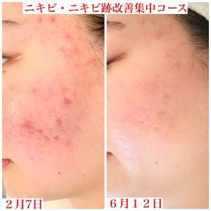 【ビフォーアフター】顔全体が赤くなる、ニキビとニキビ跡。しっかり改善できます。