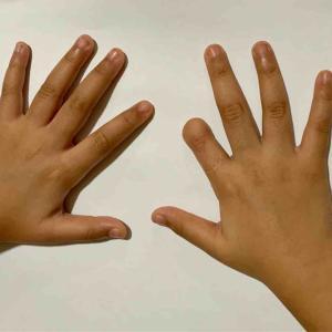 指の型どり