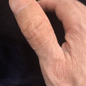 指のエピテーゼ