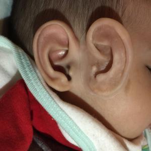 赤ちゃんの耳 2